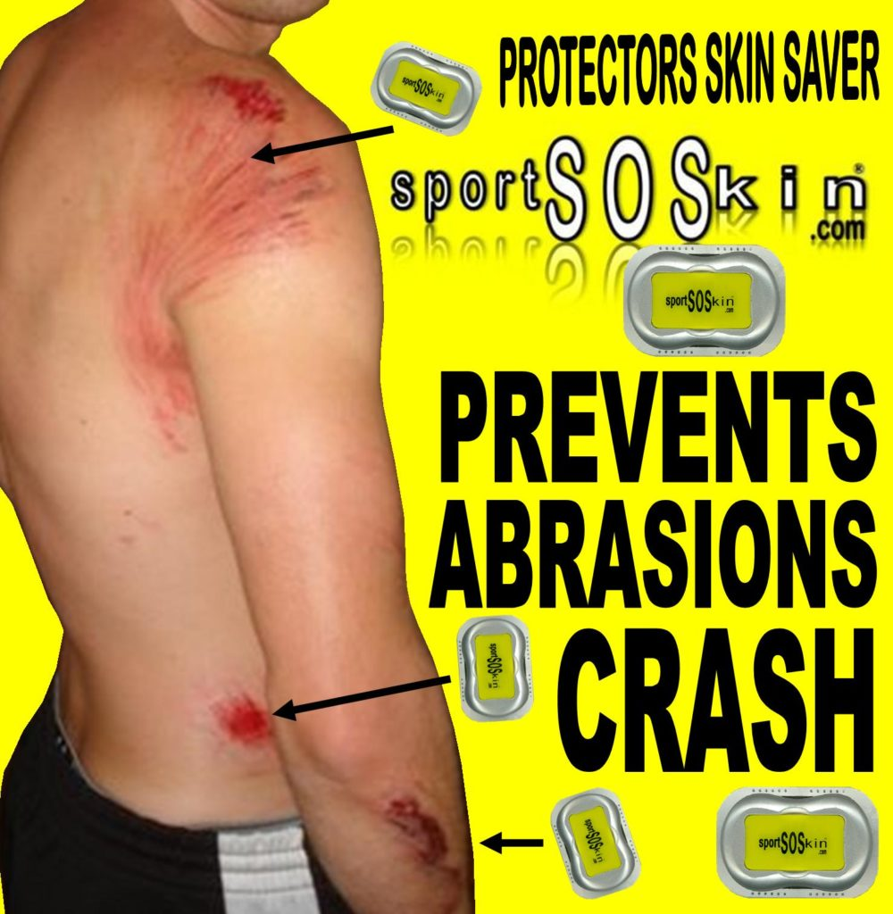 SPORTSOSKIN PREVENTS ABRASION ROAD CRASH CYCLING